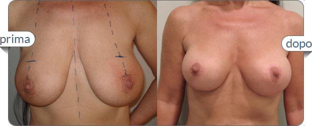 mastopessi lifting del seno foto prima dopo