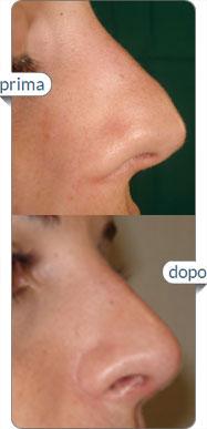 rinoplastica chirurgia naso foto prima dopo